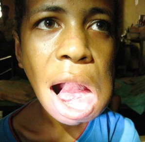 This swelling arose from a baby tooth that didn't fall out by itself. Fueled by TB infection, it grew until it covered this 12 year old boy's teeth so he could no longer eat. It took him 4 days to travel to a doctor